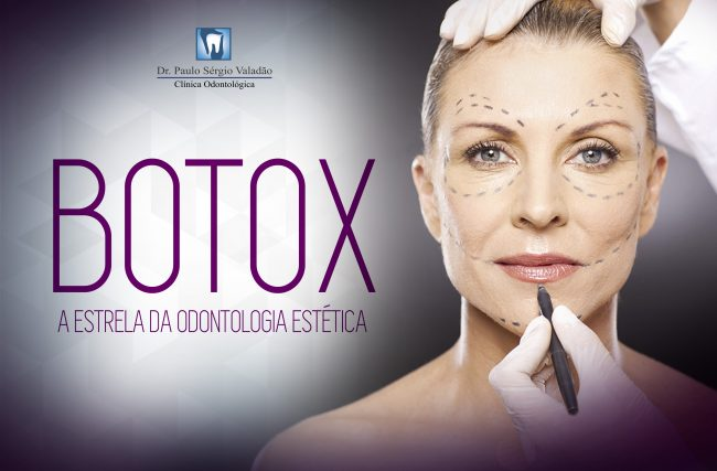 Botox: A estrela da Odontologia Estética