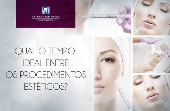 Bichectomia, lentes de contato, preenchimento… Existe um tempo ideal entre um procedimento e outro?