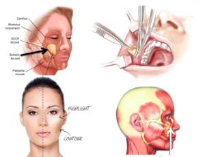 bichectomia (2)