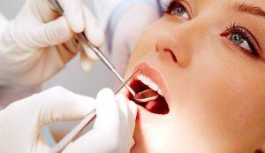 Profilaxia odontologica - odonto sergio