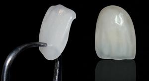 lentes-de-contato-dentais02 (1)