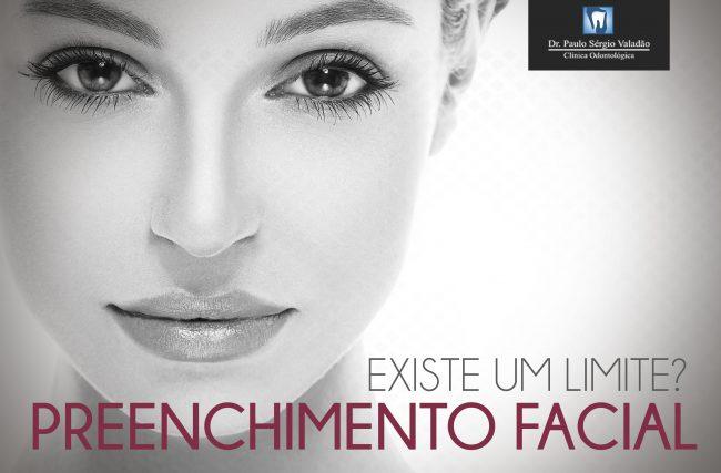 Preenchimento Facial: Existe um limite?